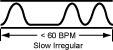 The Slow Irregular Pulse
